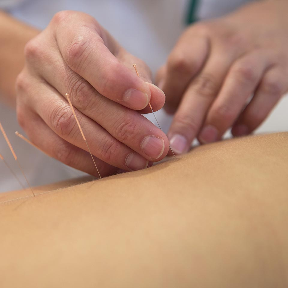Acupuncture Diploma Course