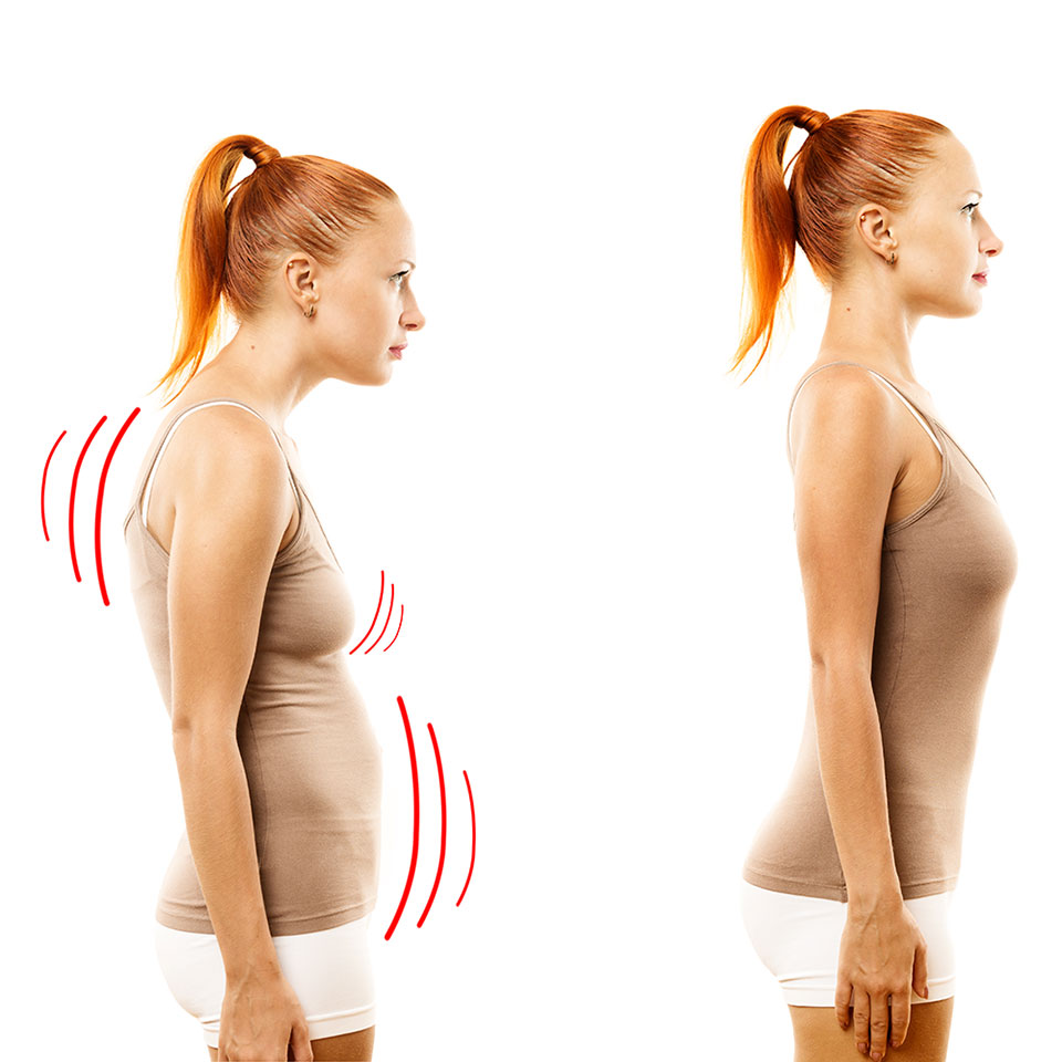 Woman with poor and improved posture