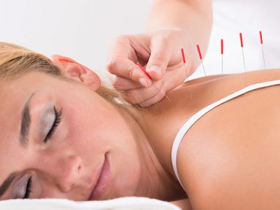 Woman receiving acupuncture treatment