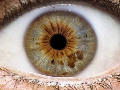 Iridology: It's All in the Eyes