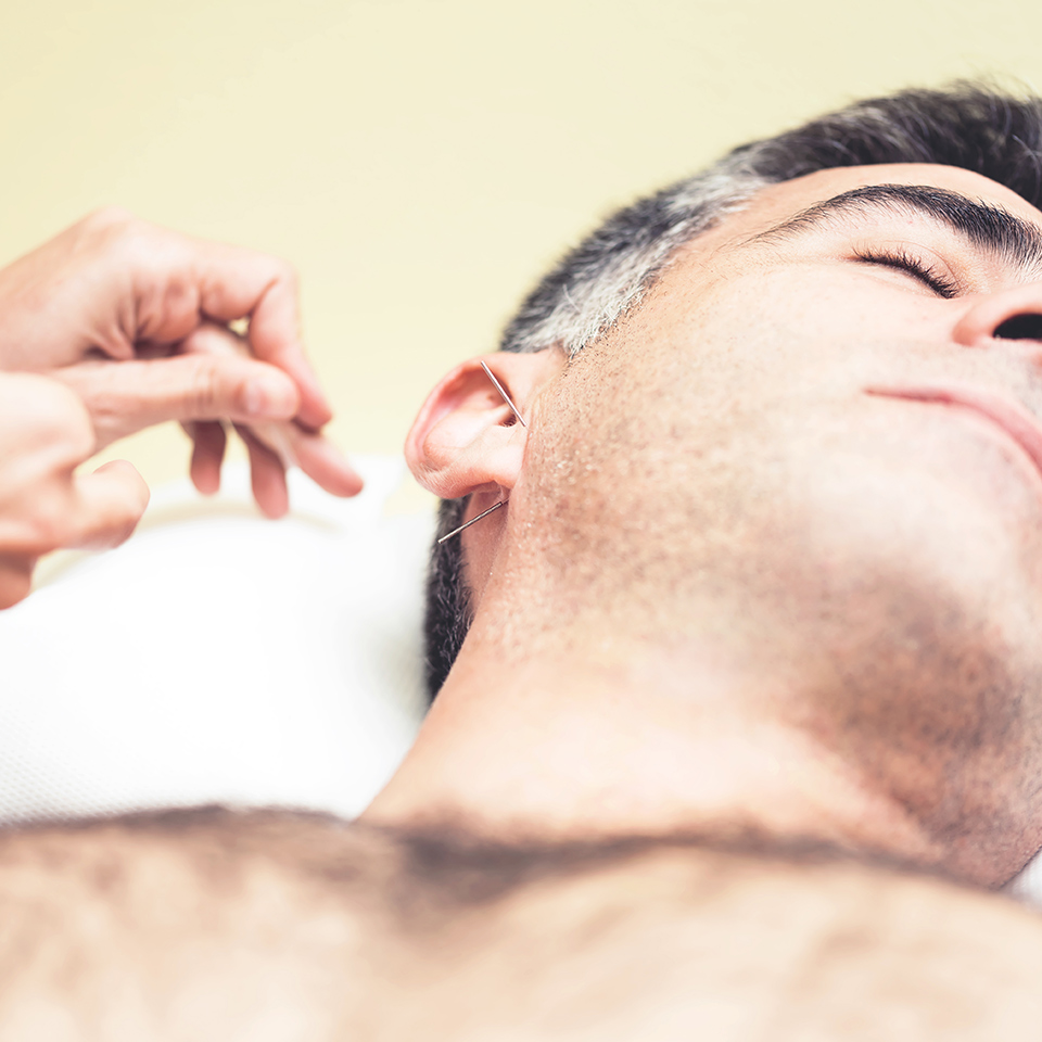 A man receiving auricular therapy, as a therapist applies acupuncture needles to his ear